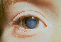 катаракта 2