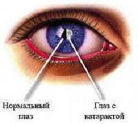 катаракта3
